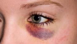 First Aid in Black Eye